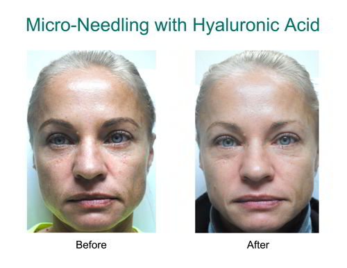 hyaluronic before and after